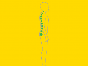 What are the types of Posture